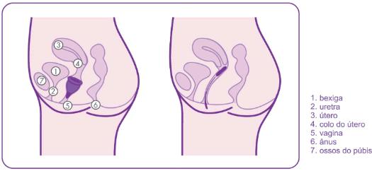 anatomia-feminina-comparao-copo-menstrual-misscup-e-absorvente-interno
